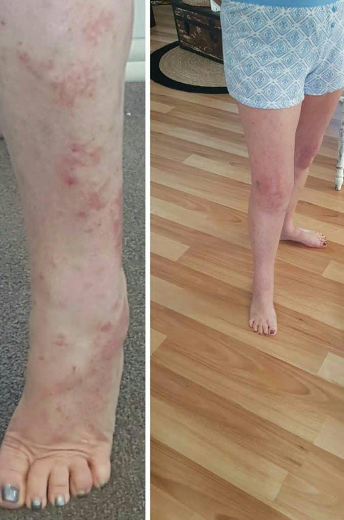 salicylates skin treatments